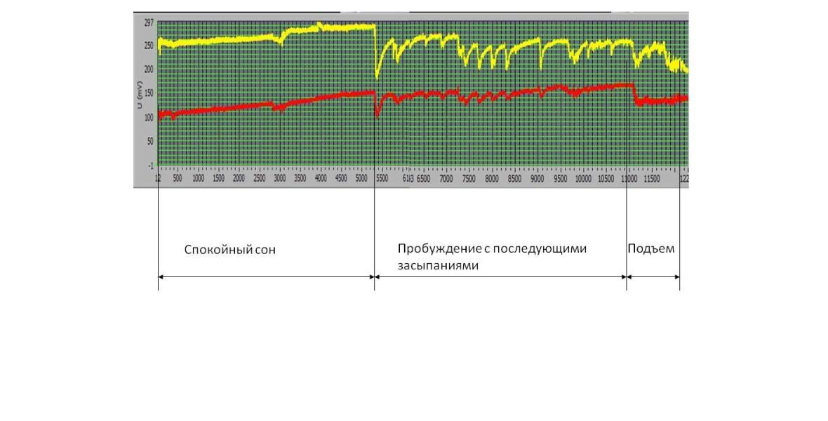 Диаграмма состояния БАТ по меридиану Mc перикард.
